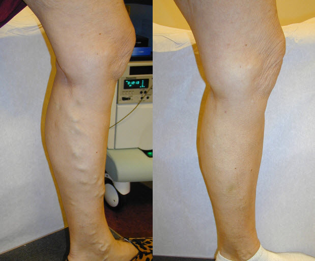 Laser vein removal before and after